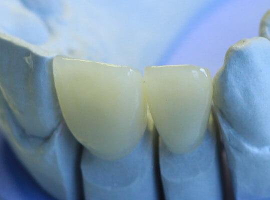 2 Zahnkronen aus Zirkon