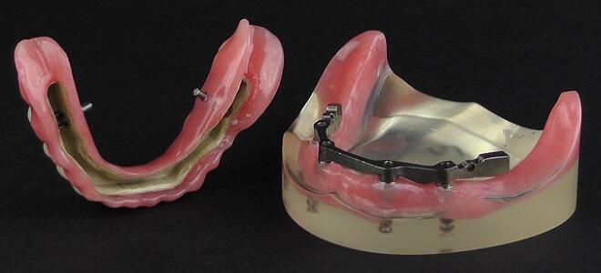 PEEK denture